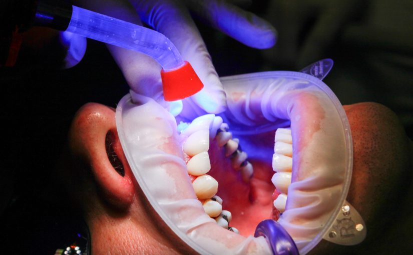 Złe postępowanie odżywiania się to większe deficyty w zębach a również ich brak