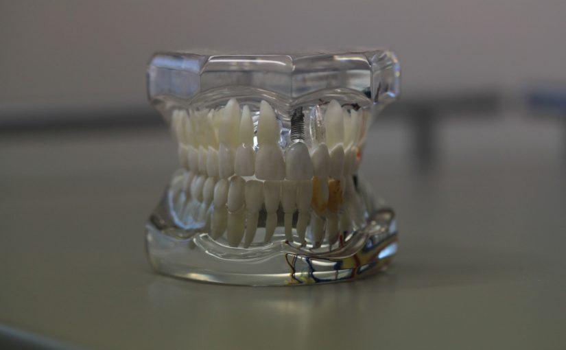 Zła sposób żywienia się to większe niedostatki w jamie ustnej natomiast dodatkowo ich brak